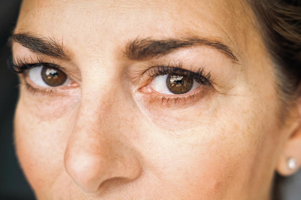 Anti-Aging: Hilfe bei Tränensäcken